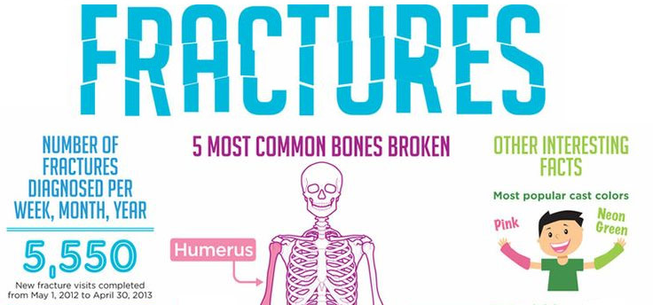 5 Most Common Bone Fractures for Kids | Sports & Spine Orthopaedics