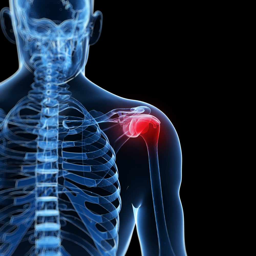 Top rotator cuff injury doctor in manhattan beach and torrance southbay
